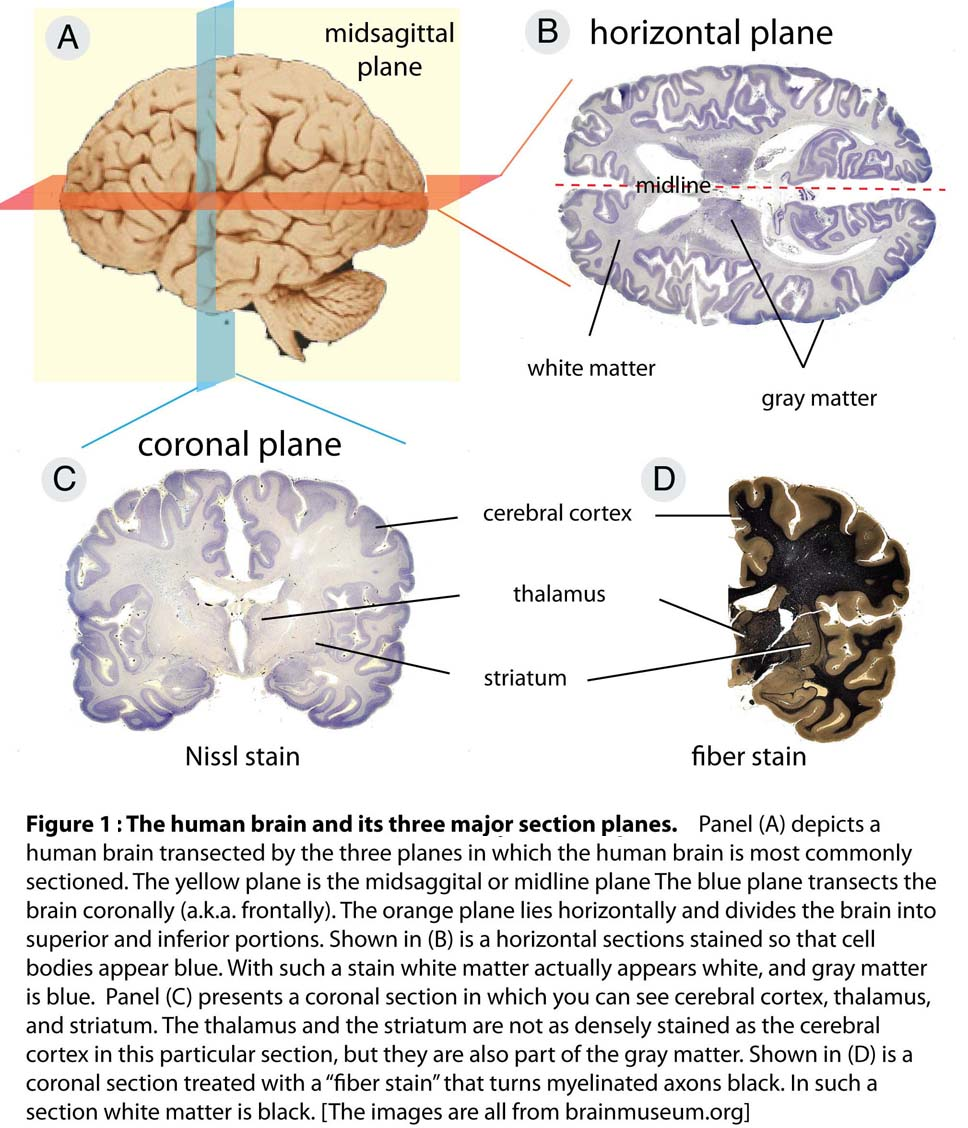 Skull Illustrations also 7648989 moreover SectionPlanes as well Clivus  anatomy together with Introduction To Anatomy 24214681. on anatomical planes of brain